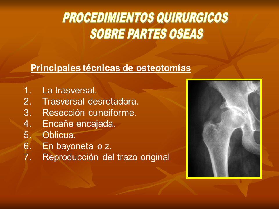 Principales técnicas de osteotomías