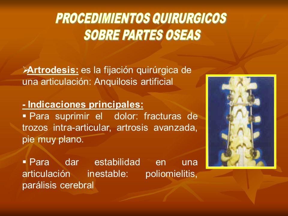 PROCEDIMIENTOS QUIRURGICOS