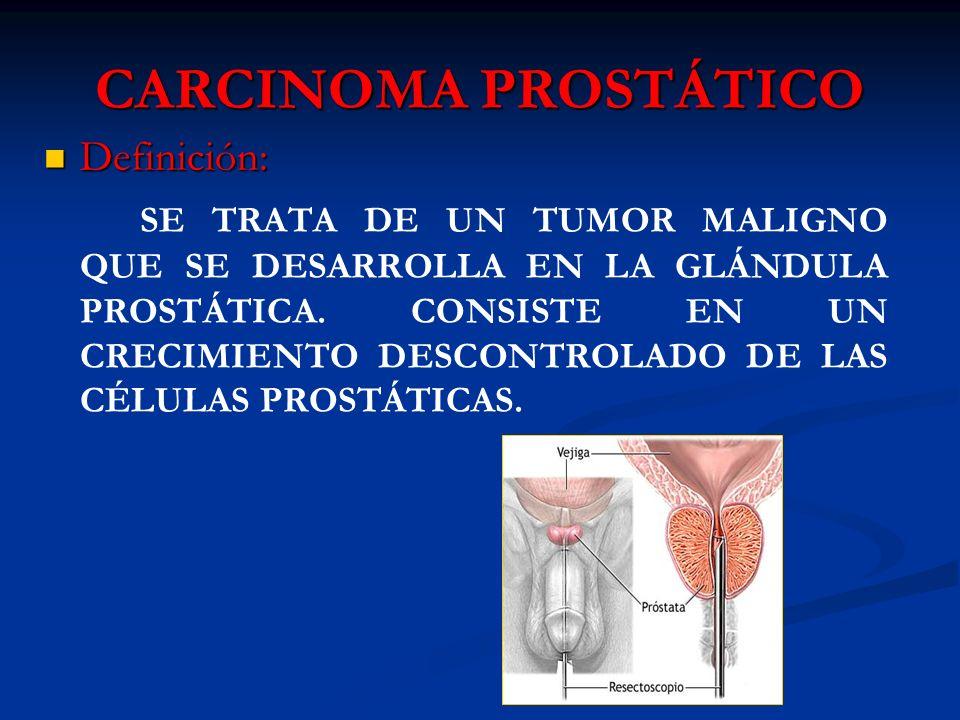CARCINOMA PROSTÁTICO Definición: