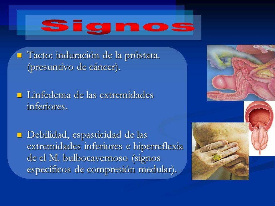 Signos Tacto: induración de la próstata. (presuntivo de cáncer).