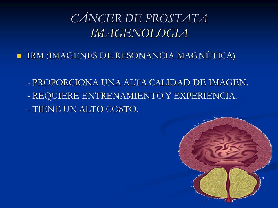 CÁNCER DE PROSTATA IMAGENOLOGIA