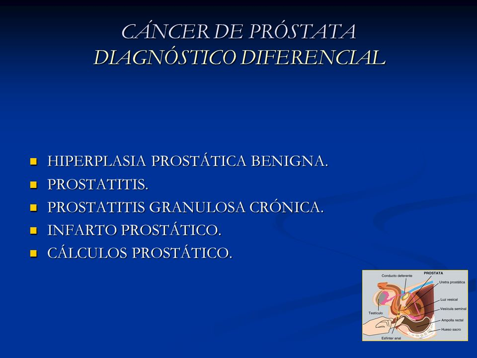CÁNCER DE PRÓSTATA DIAGNÓSTICO DIFERENCIAL
