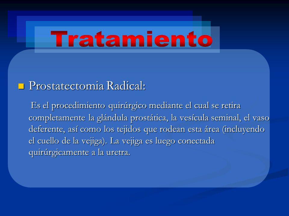 Tratamiento Prostatectomia Radical: