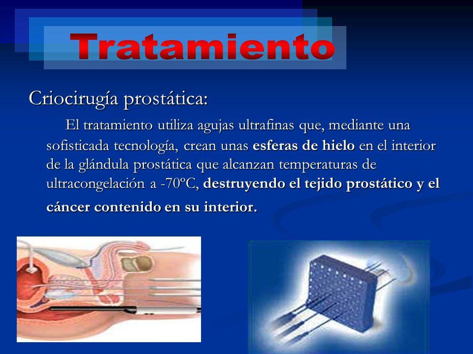 Tratamiento Criocirugía prostática: