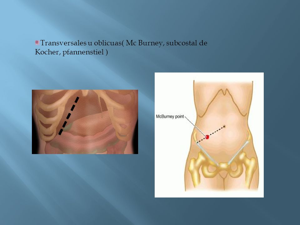 Transversales u oblicuas( Mc Burney, subcostal de Kocher, pfannenstiel )