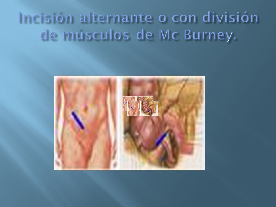 Incisión alternante o con división de músculos de Mc Burney.
