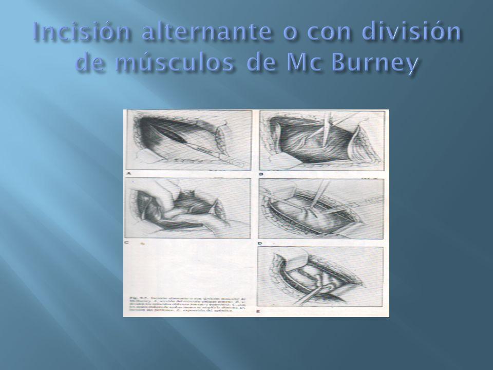 Incisión alternante o con división de músculos de Mc Burney