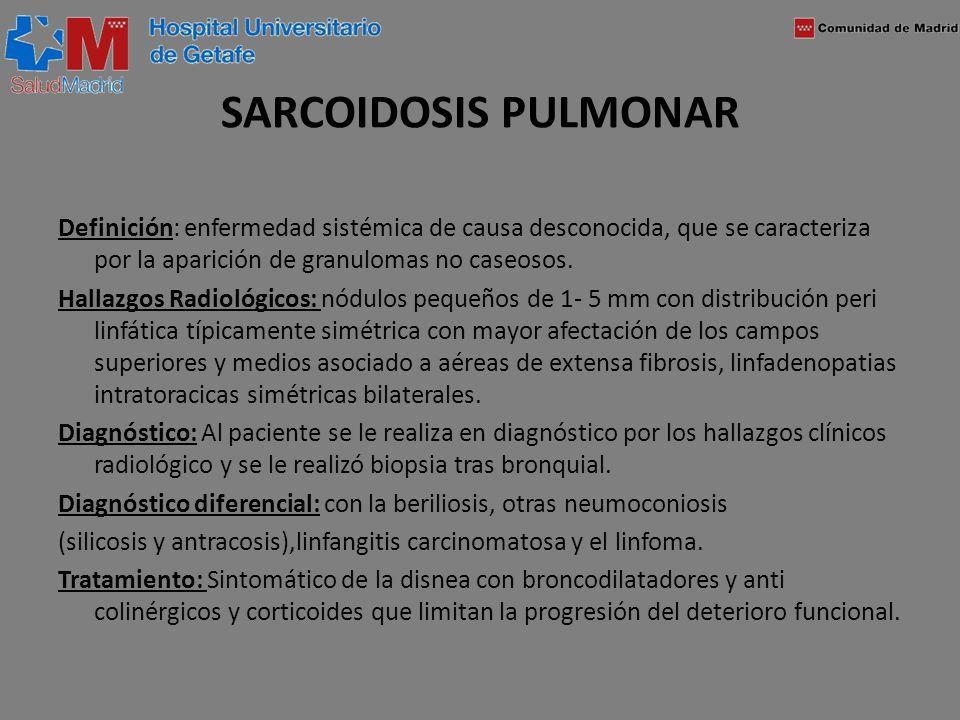 SARCOIDOSIS PULMONAR