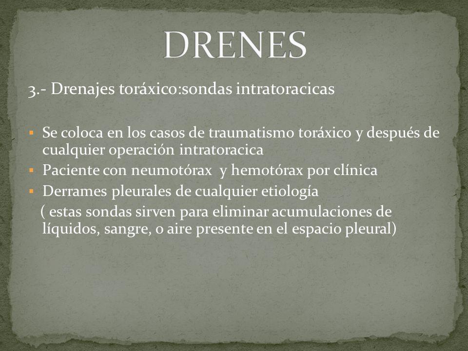 DRENES 3.- Drenajes toráxico:sondas intratoracicas