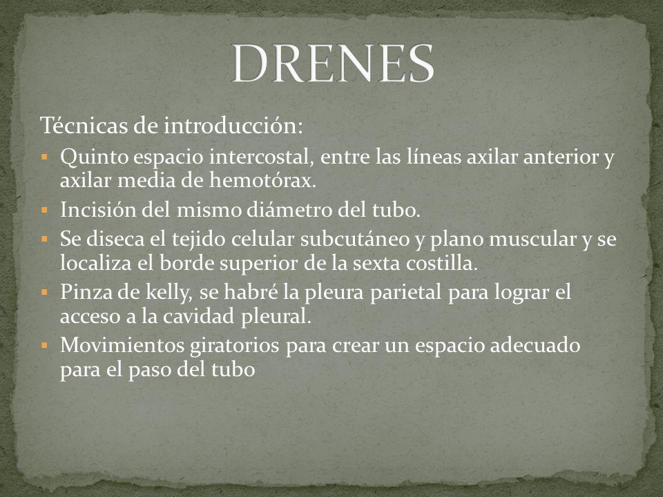 DRENES Técnicas de introducción: