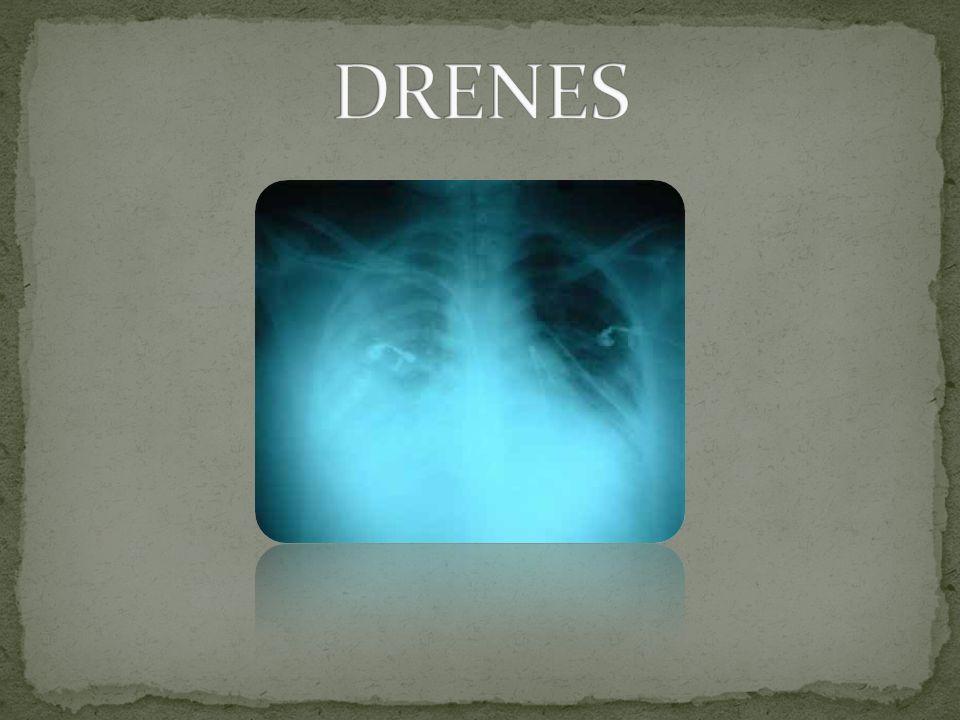 DRENES