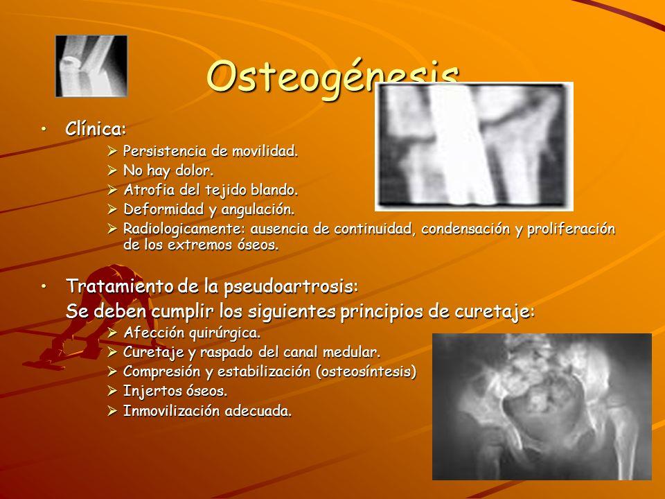 Osteogénesis Clínica: Tratamiento de la pseudoartrosis: