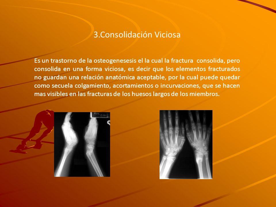 3.Consolidación Viciosa