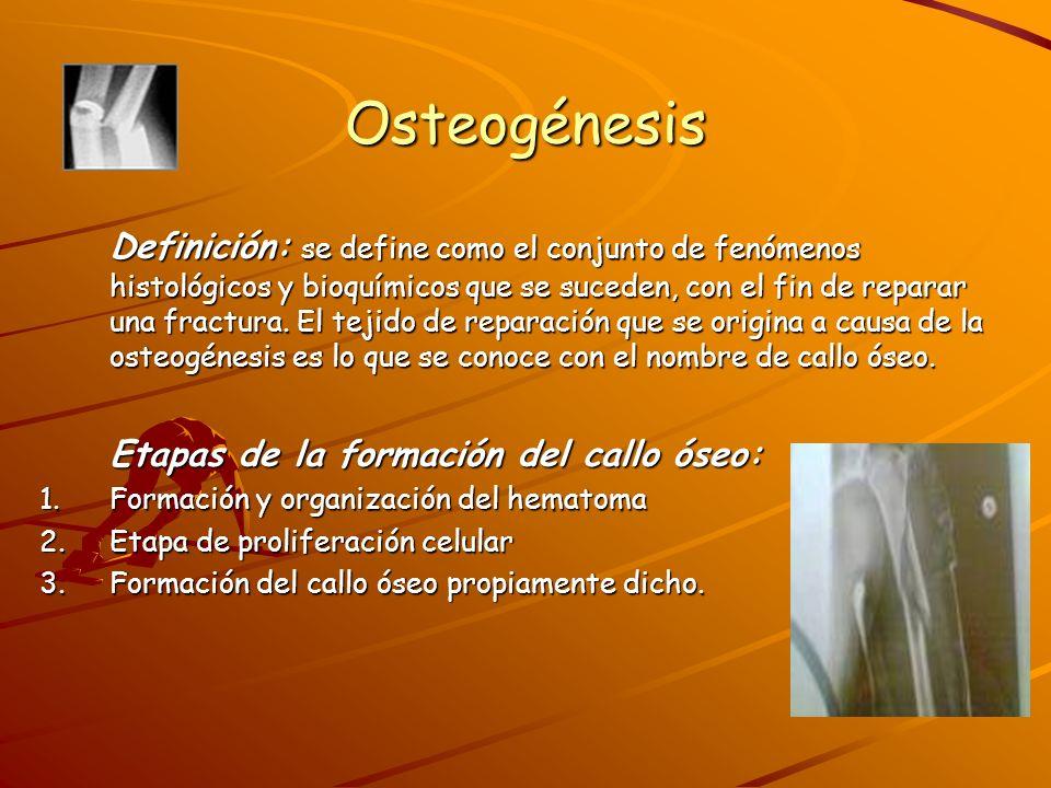 Osteogénesis