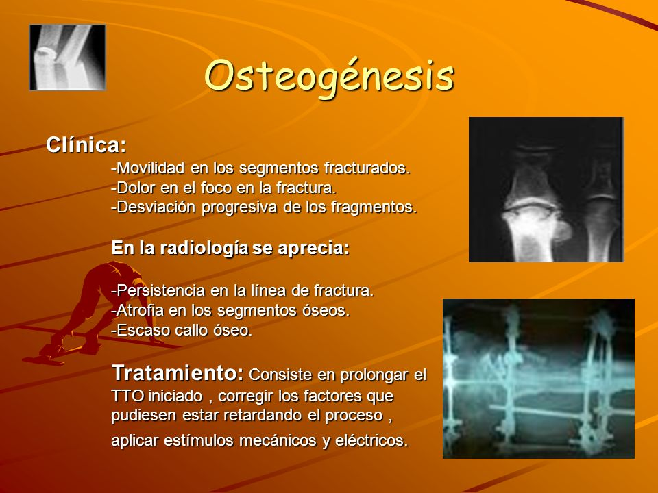 Osteogénesis Clínica: