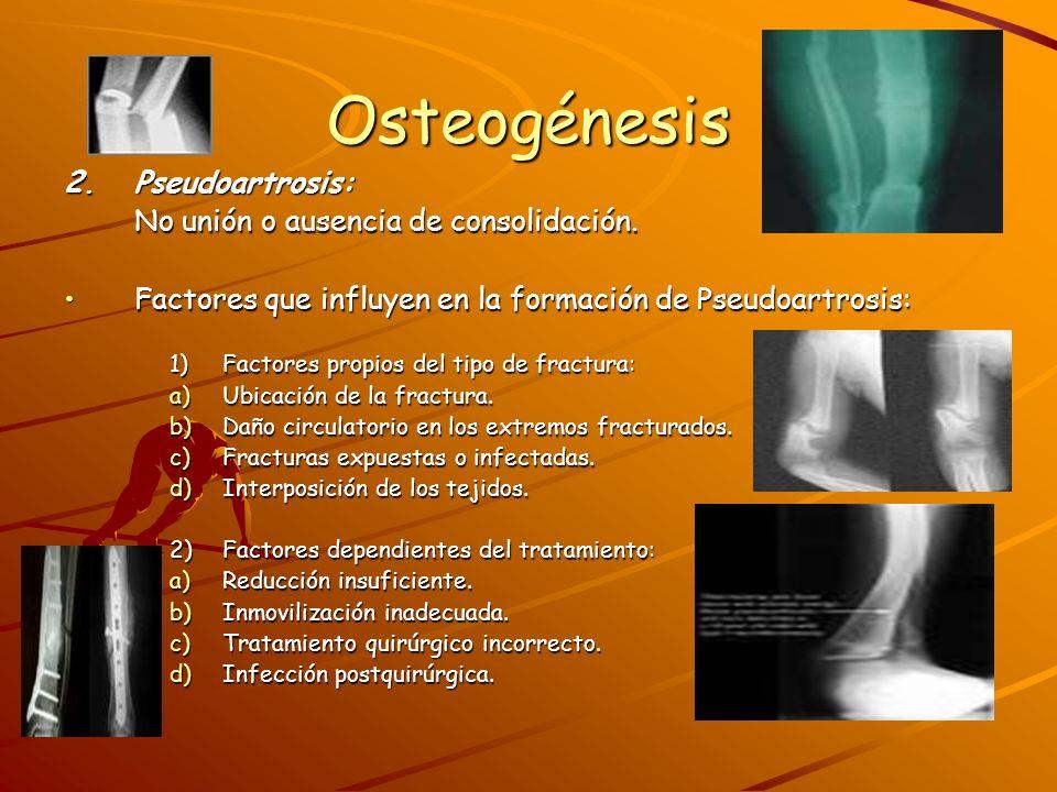 Osteogénesis 2. Pseudoartrosis: No unión o ausencia de consolidación.