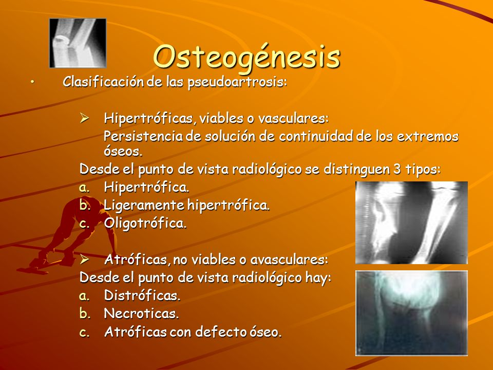 Osteogénesis Clasificación de las pseudoartrosis: