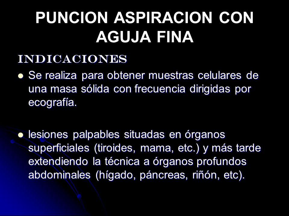 PUNCION ASPIRACION CON AGUJA FINA
