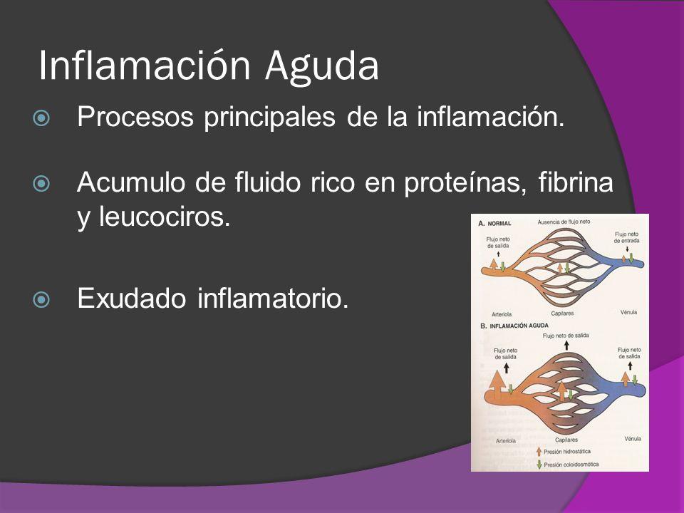 Inflamación Aguda Procesos principales de la inflamación.