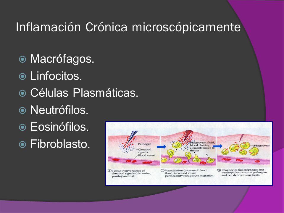 Inflamación Crónica microscópicamente