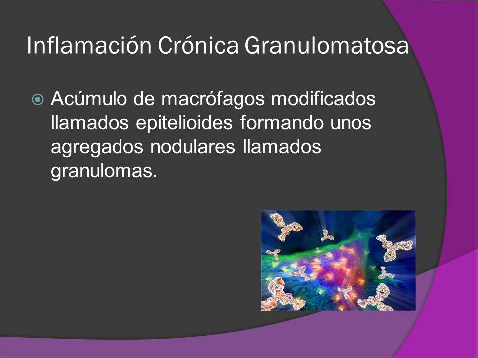 Inflamación Crónica Granulomatosa