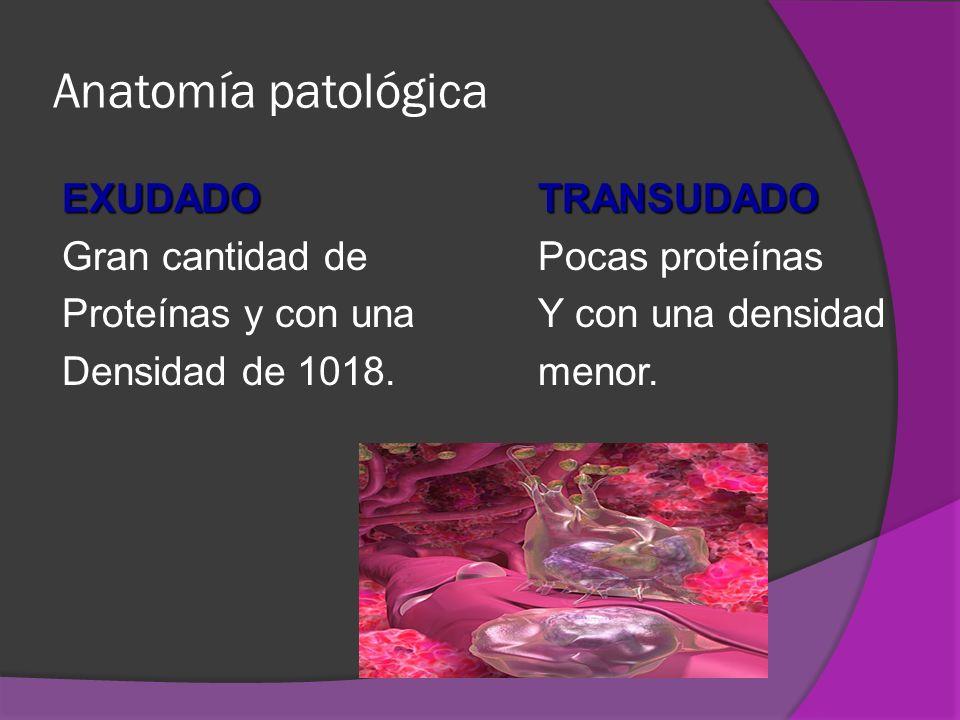 Anatomía patológica EXUDADO TRANSUDADO Gran cantidad de Pocas proteínas Proteínas y con una Y con una densidad Densidad de 1018.