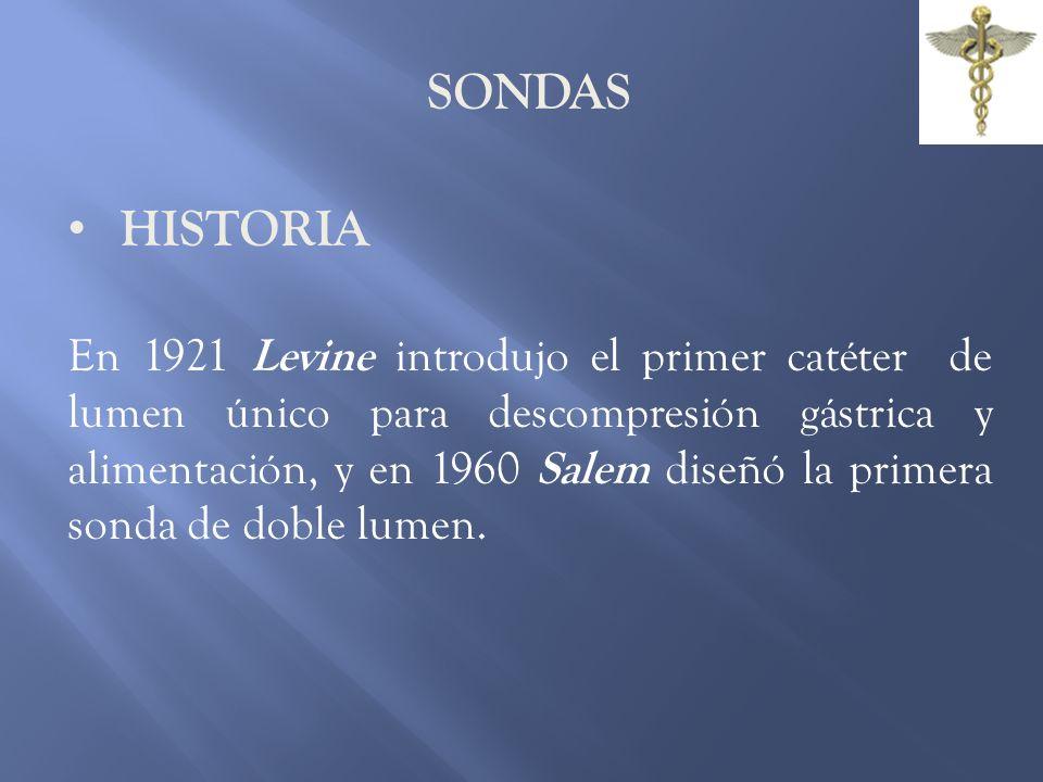 SONDAS HISTORIA.
