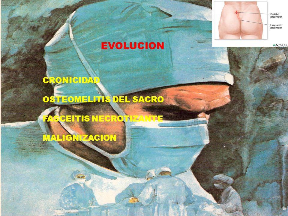 EVOLUCION CRONICIDAD OSTEOMELITIS DEL SACRO FASCEITIS NECROTIZANTE