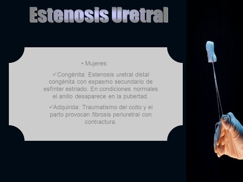 Estenosis Uretral Mujeres: