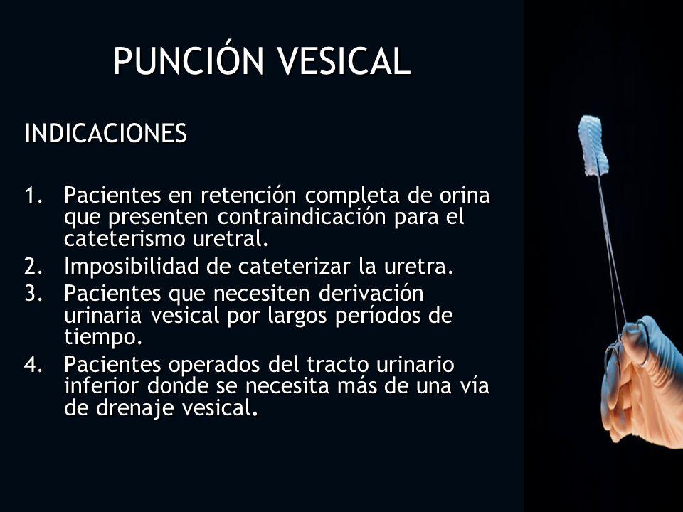 PUNCIÓN VESICAL INDICACIONES