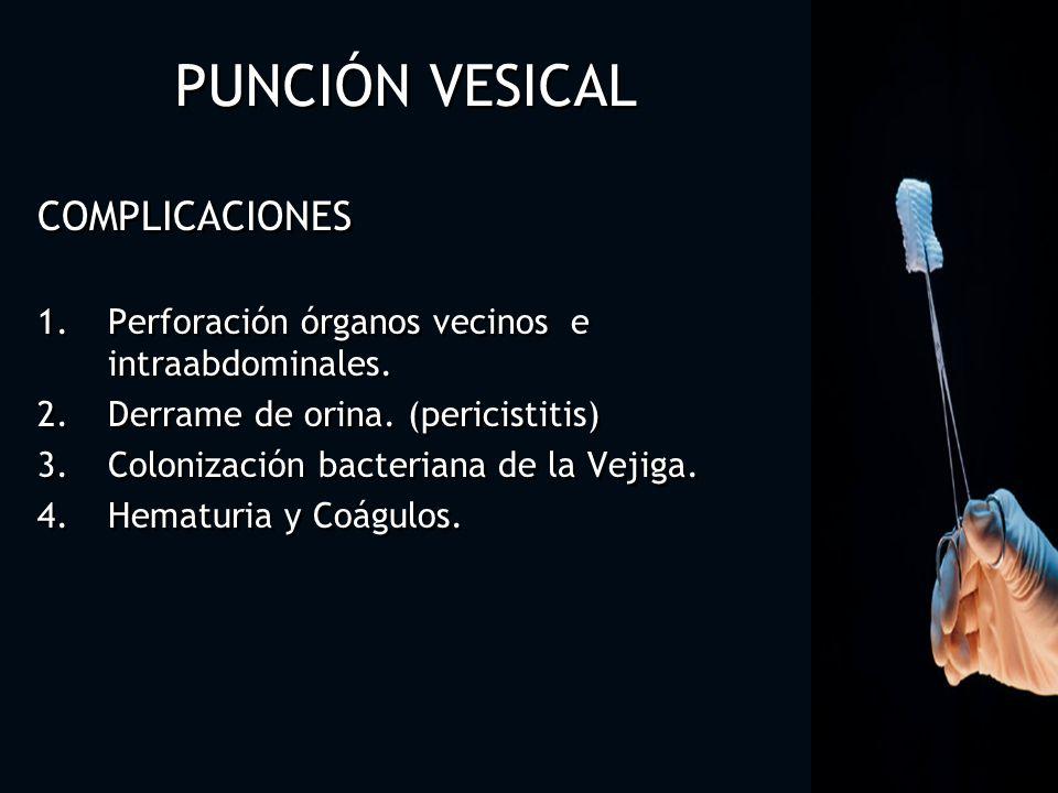 PUNCIÓN VESICAL COMPLICACIONES