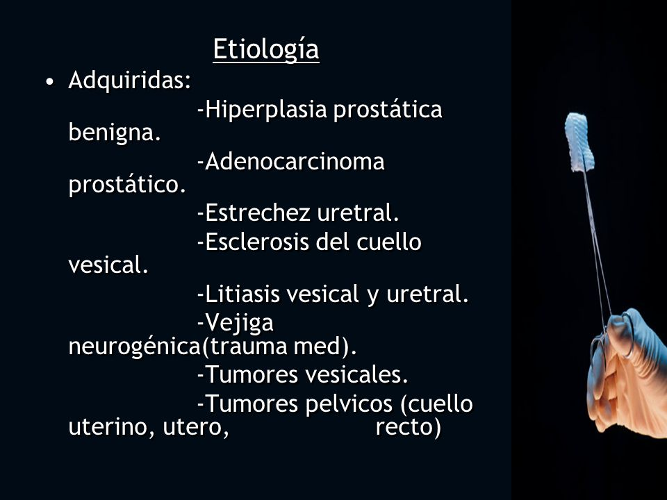 Etiología Adquiridas: -Hiperplasia prostática benigna.