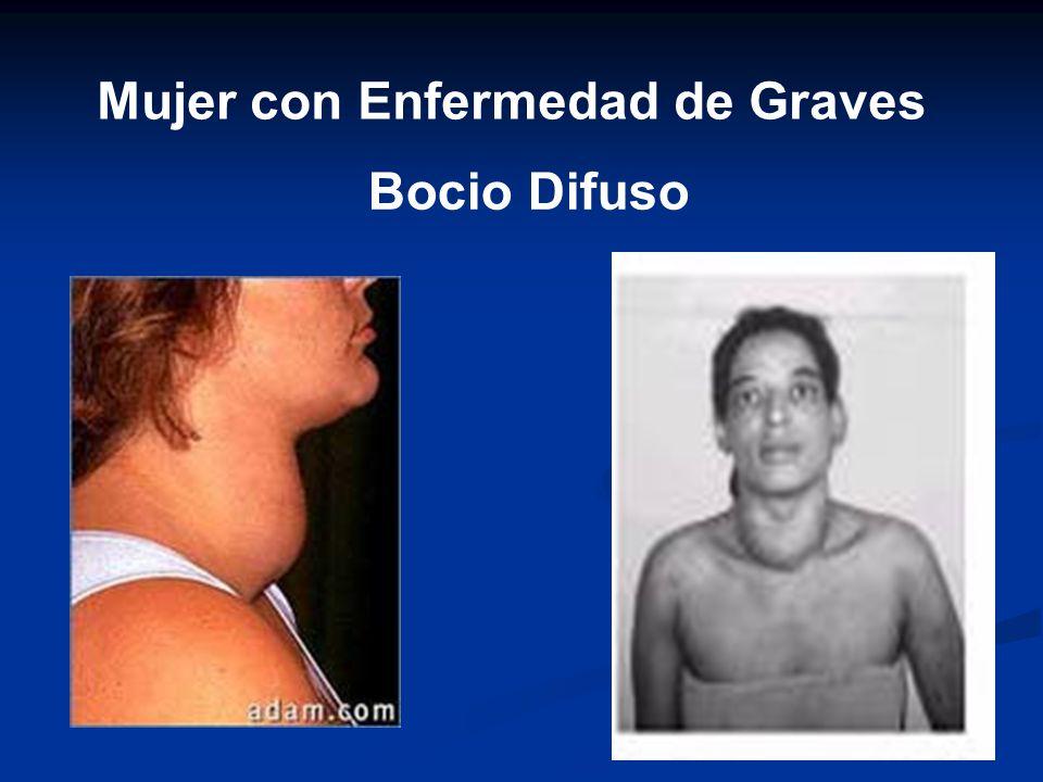 Mujer con Enfermedad de Graves