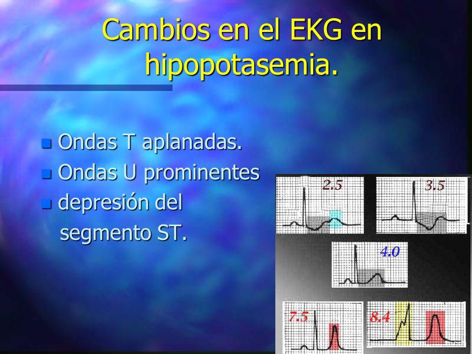 Cambios en el EKG en hipopotasemia.