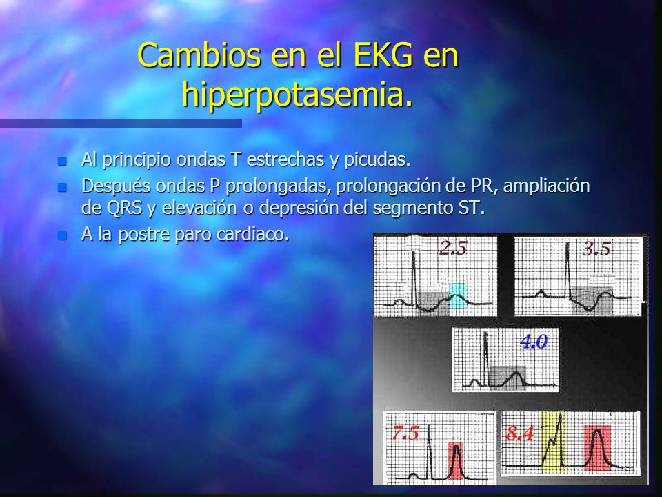 Cambios en el EKG en hiperpotasemia.