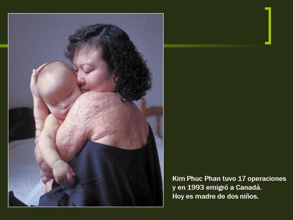 Kim Phuc Phan tuvo 17 operaciones y en 1993 emigró a Canadá.