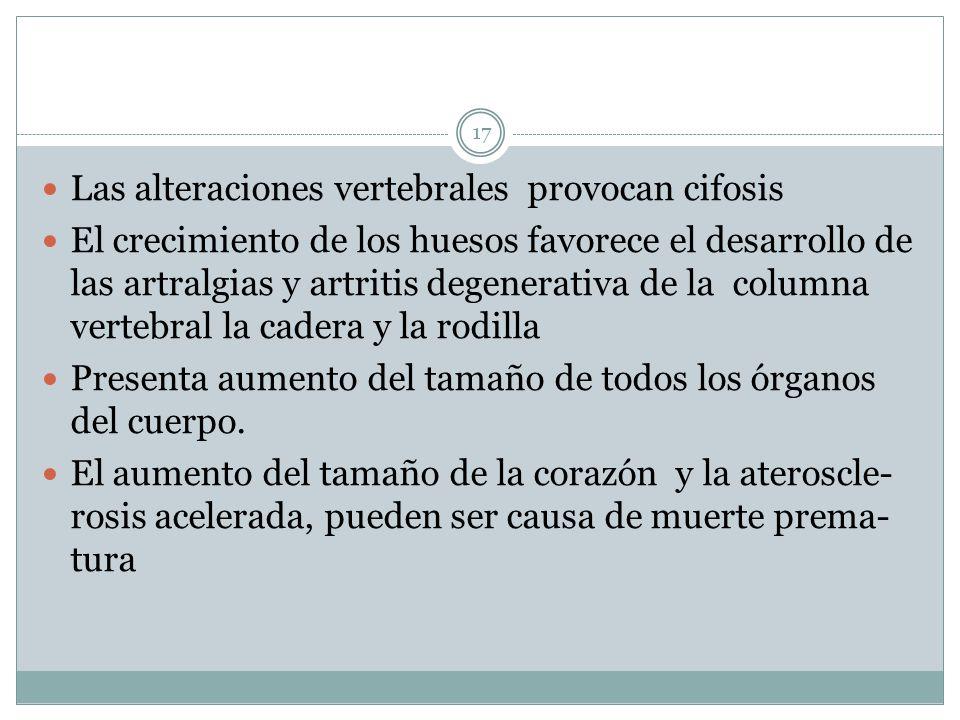 Las alteraciones vertebrales provocan cifosis