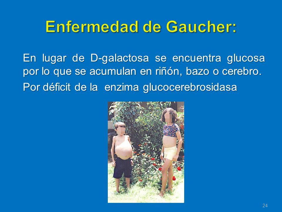 Enfermedad de Gaucher: