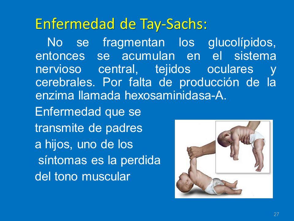 Enfermedad de Tay-Sachs: