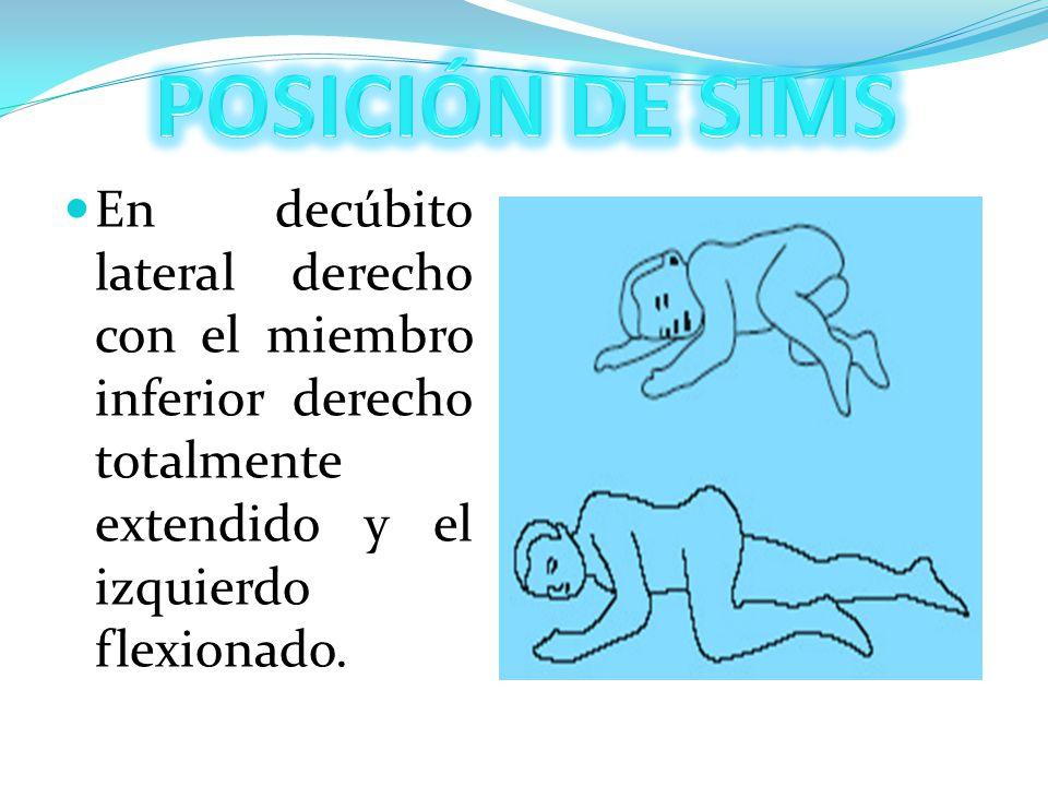 POSICIÓN DE SIMS En decúbito lateral derecho con el miembro inferior derecho totalmente extendido y el izquierdo flexionado.