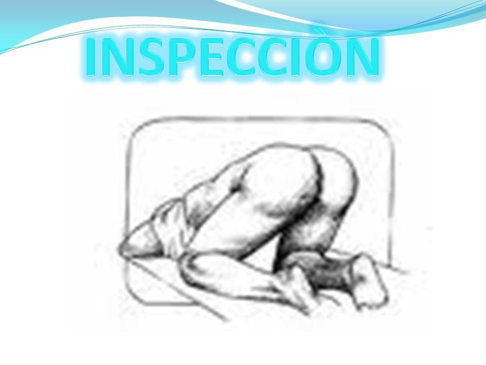 INSPECCIÒN