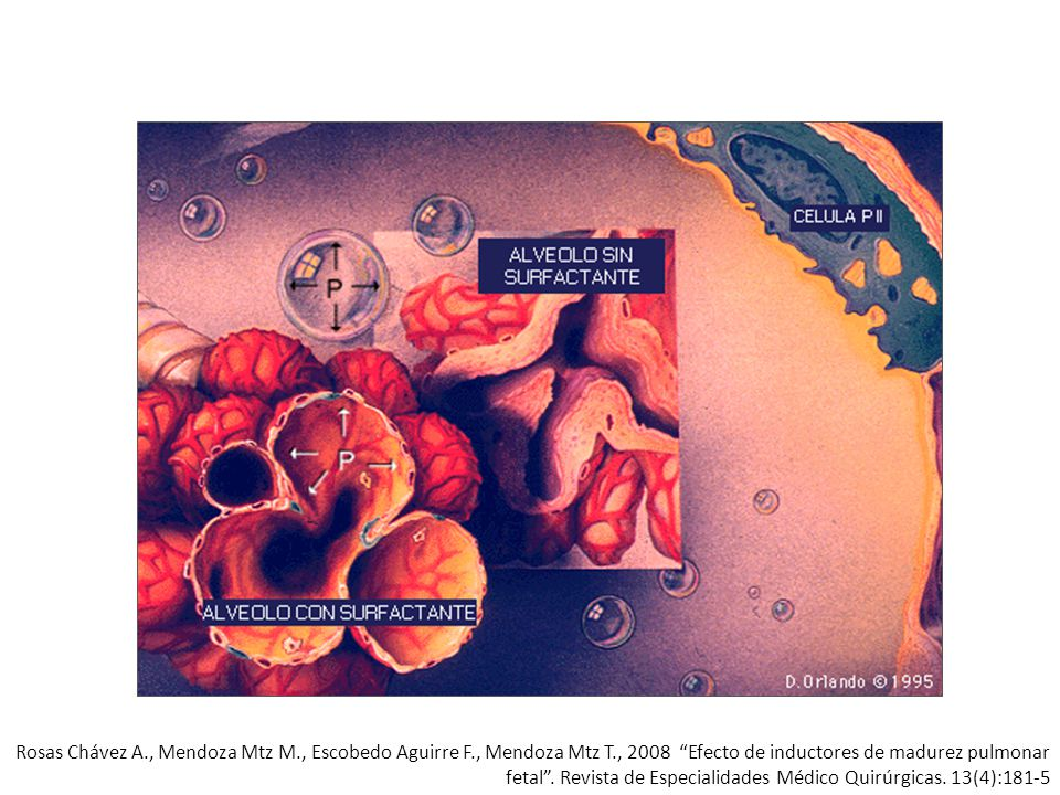 Rosas Chávez A. , Mendoza Mtz M. , Escobedo Aguirre F. , Mendoza Mtz T