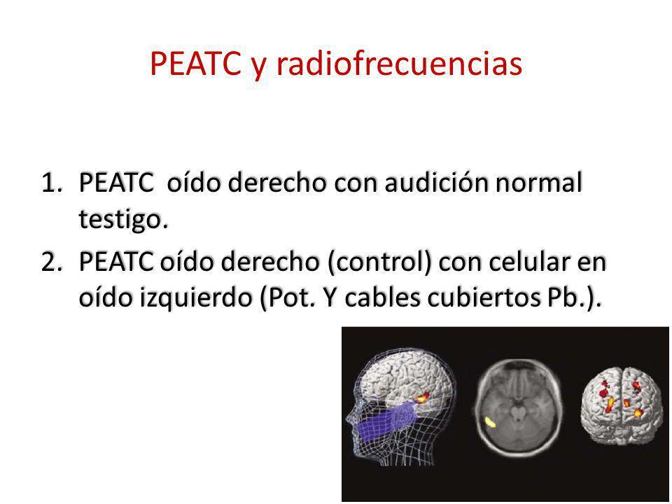 PEATC y radiofrecuencias