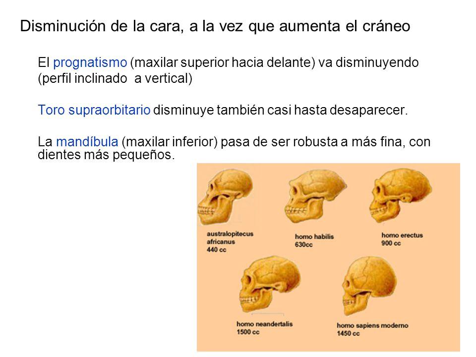 Disminución de la cara, a la vez que aumenta el cráneo