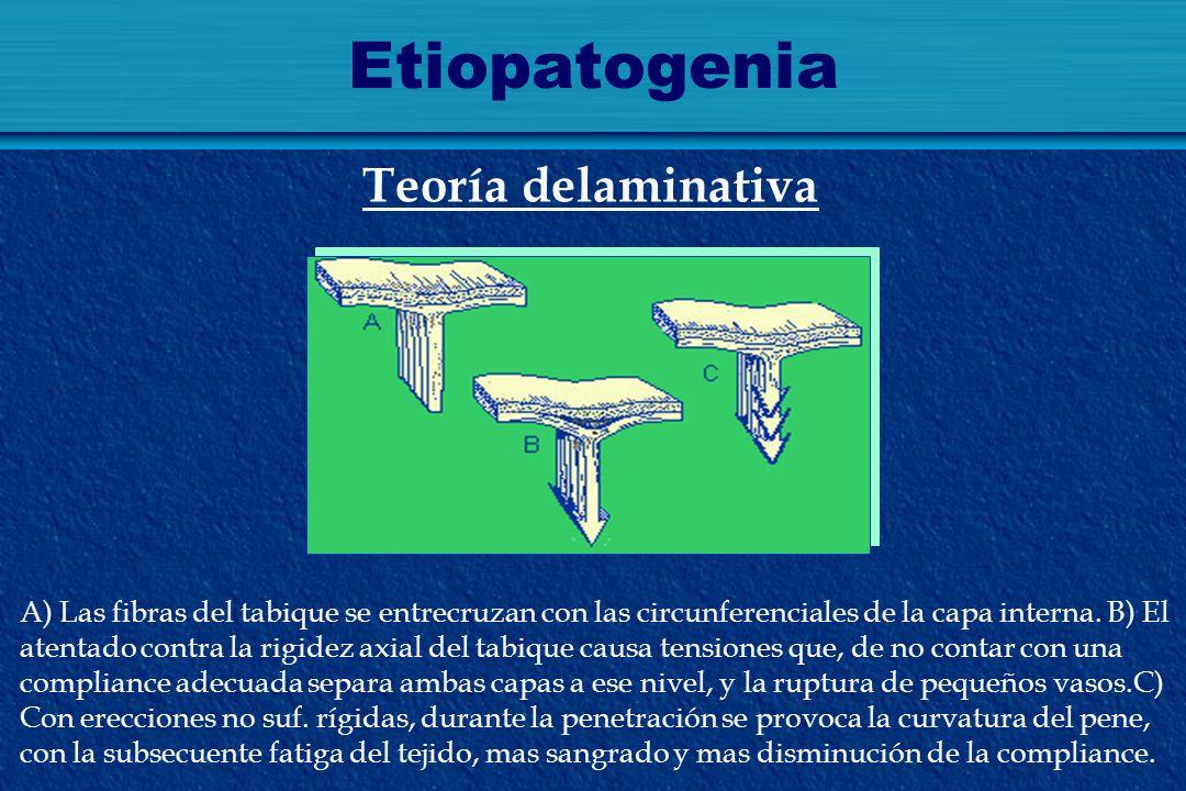 Etiopatogenia Teoría delaminativa