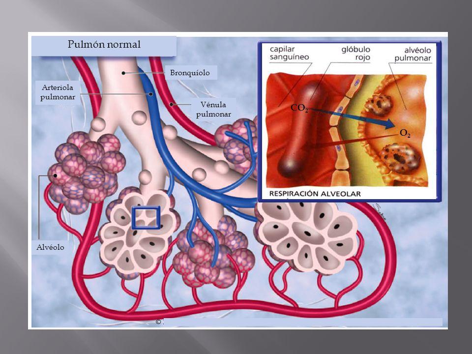 Pulmón normal CO2 O2 Bronquíolo Arteriola pulmonar Vénula pulmonar