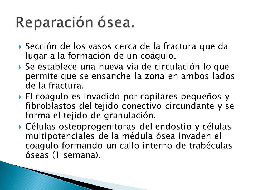 Reparación ósea. Sección de los vasos cerca de la fractura que da lugar a la formación de un coágulo.
