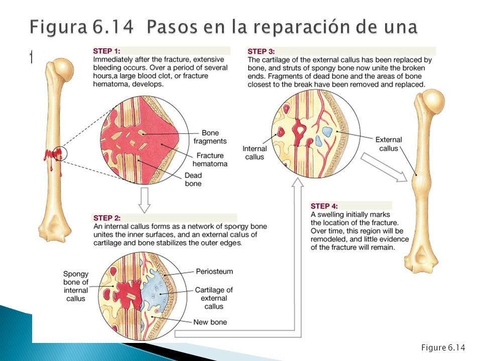 Figura 6.14 Pasos en la reparación de una fractura