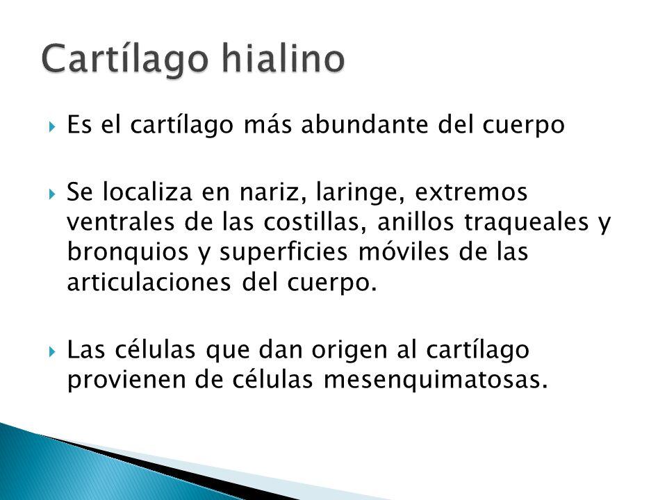 Cartílago hialino Es el cartílago más abundante del cuerpo