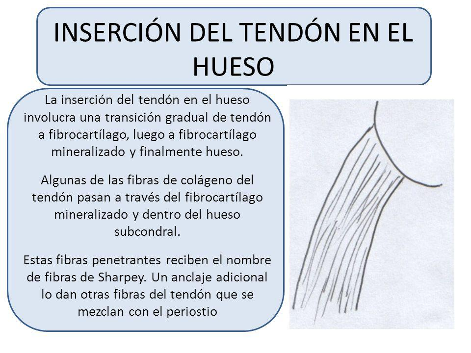 INSERCIÓN DEL TENDÓN EN EL HUESO